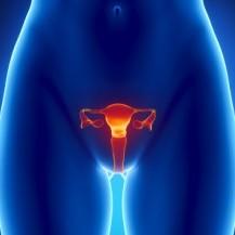 рак шейки матки лечение в израиле