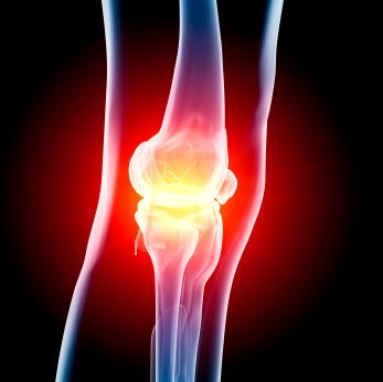 Замена коленного сустава в Израиле