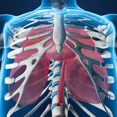 Лечение аневризмы грудной аорты в Израиле | Манор Медикал Центр