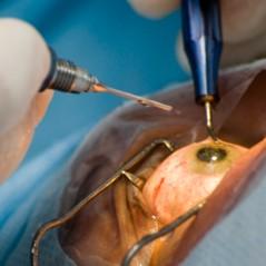 Витрэктомия глаза
