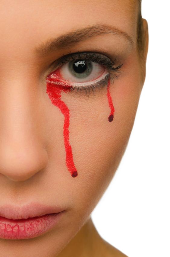 Как сделать чтобы пошла кровь из глаза