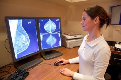 Трёхмерная маммография молочной железы