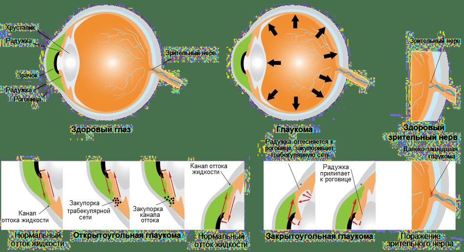 Признаки глаукомы