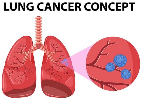 индивидуальная терапия рака легких