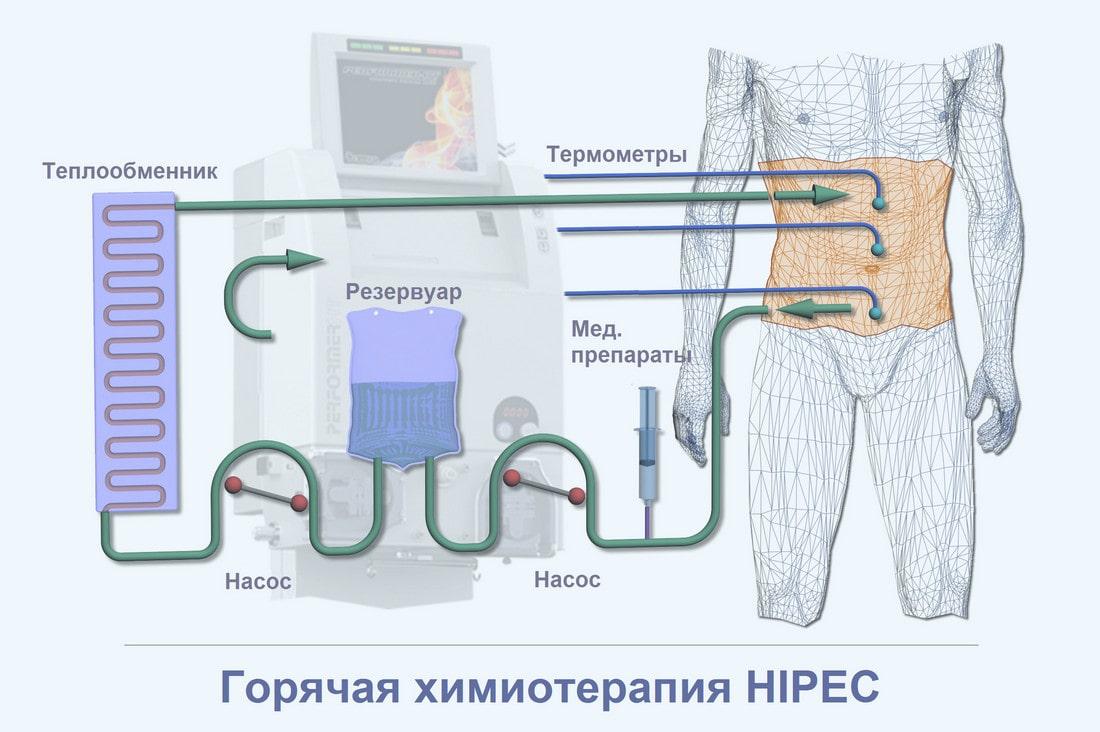 Аппарат для проведения HIPEC