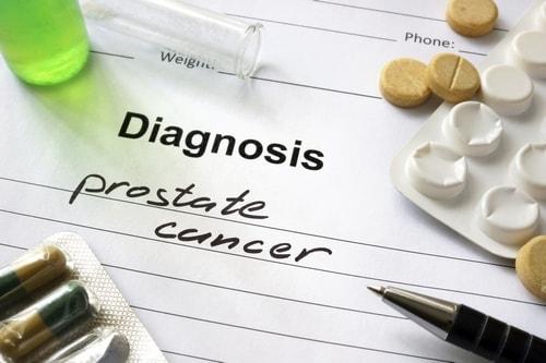TOOKAD инновационный метод лечения рака простаты