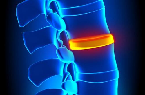 боли в спине и как с ними бороться