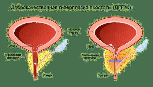 лечение аденомы в израиле
