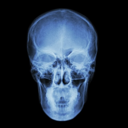 20% пациентов, проходящих диализ, умирают