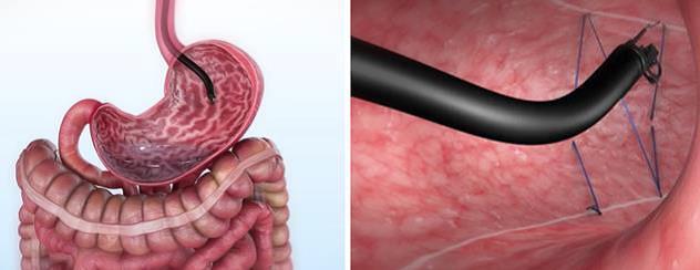 Эндоскопическая рукавная гастропластика