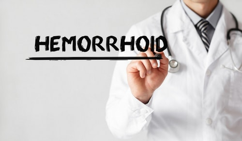 Hemorrhoids treatment in Israel
