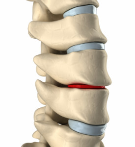 Spine Treatment in Israel