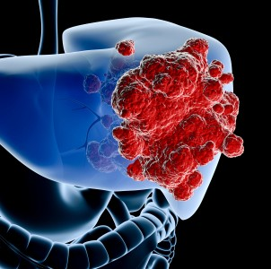 Liver cancer treatment in Israel