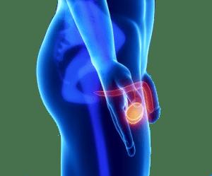 Лечение рака яичка в Израиле