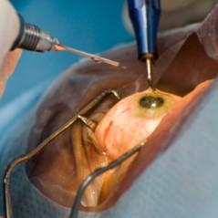 Операция Kератоконус