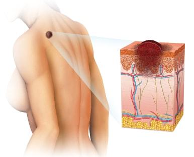 меланома - лечение дендритными клетками