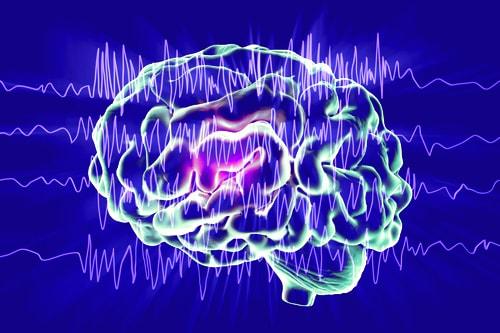 Хирургическое лечение эпилепсии в Израиле