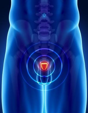 простатэктомия для лечения РПЖ
