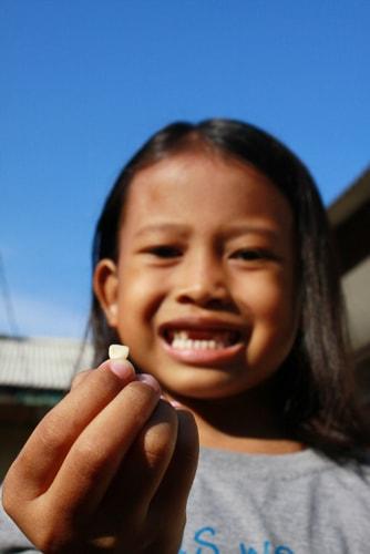 Регенерация зубов - инновационная стоматология