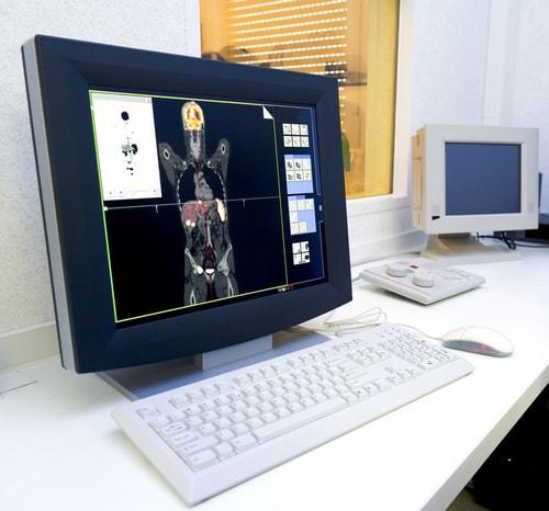 Скрининг-тесты для рака легких
