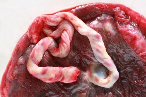 Стволовые клетки отменяют эндопротезирование