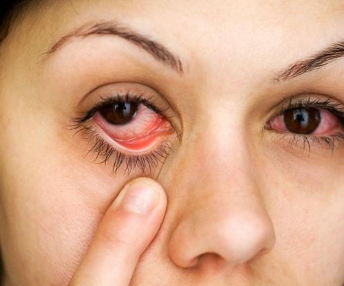 Красный глаз. Ухудшение зрения: причины и последствия