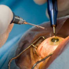 Vitrectomy Surgery in Israel