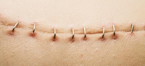 закрытие хирургических ран без швов