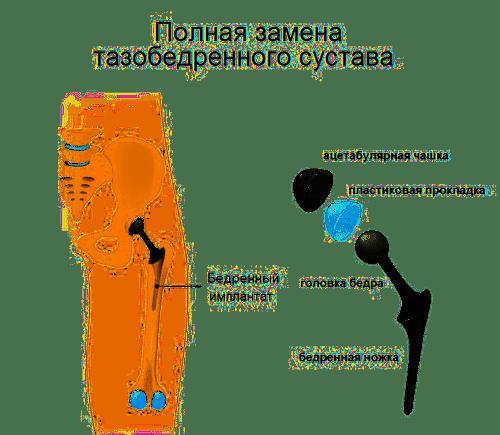 Эндопротезирование тазобедренного сустава в Израиле