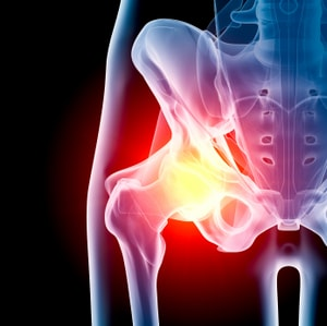 Hip Replacement Surgery in Israel